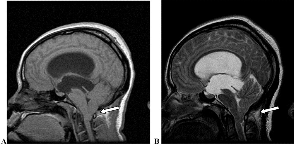 chiari malformation case report The chiari malformation is an infrequently detected congenital anomaly characterized by the downward displacement of  a case report j med case rep 5:68-69, 2011 3.